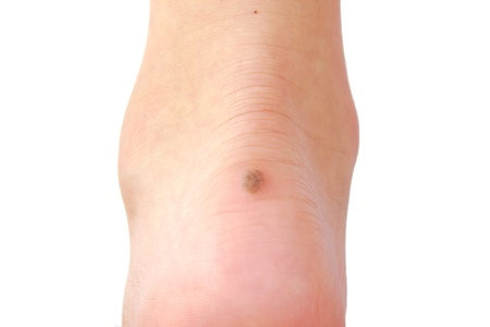 Skin Cancer Can Affect Your Feet New Albany In Foot Doctor