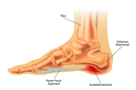 3 Causes 3 Treatments Of Bone Spurs New Albany In Foot Doctor