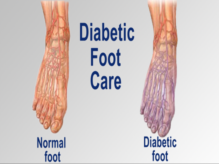 Foot Care Is Crucial For Diabetics New Albany In Foot Doctor