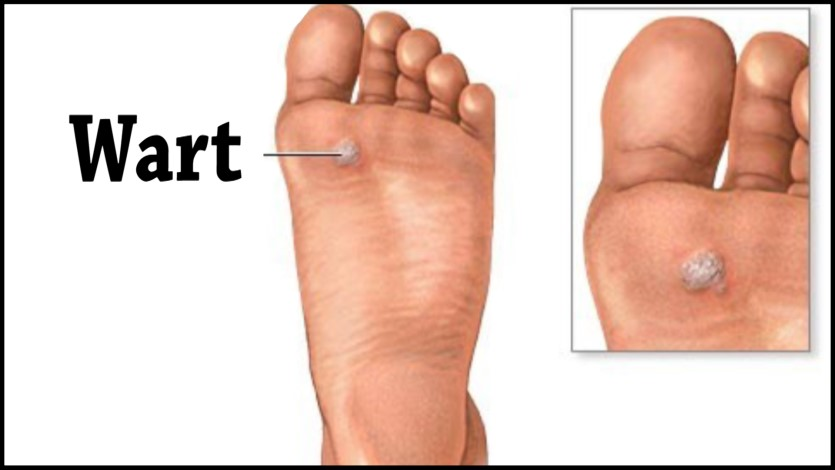 Protecting Your Feet From Plantar Warts New Albany In Foot Doctor